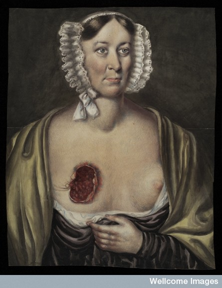 L0037321 Mrs Prince, after surgical removal of a breast.